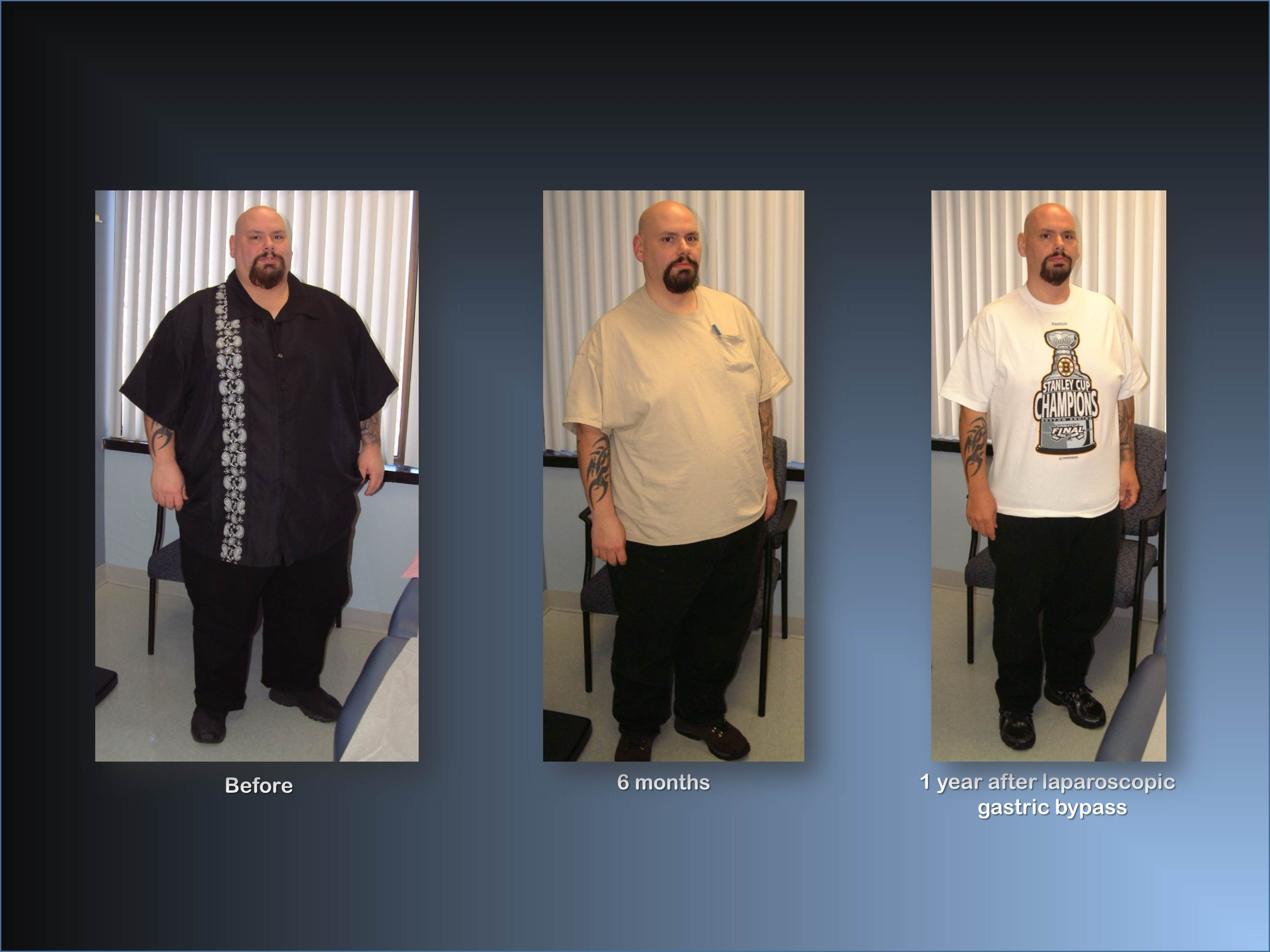 Photo Gallery Before And After Obesity Surgery